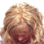 ready made wigs for hair loss