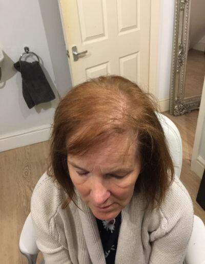 crown view of ladies hair loss