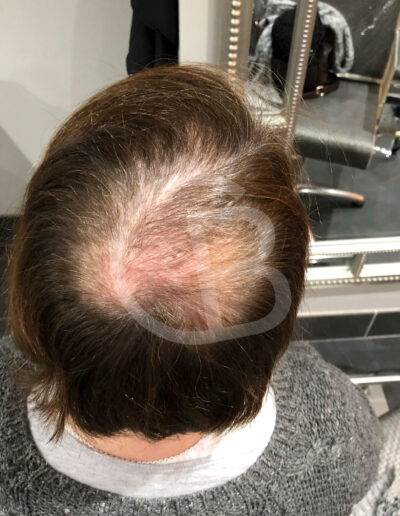 wigs, hairpieces and toupees for people with hair loss