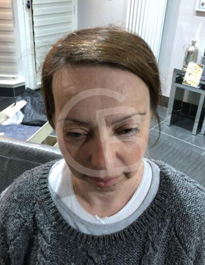 ladies hair loss systems