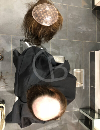 hair loss replacement systems