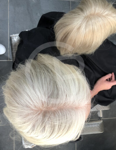 hair pieces for women with hair loss