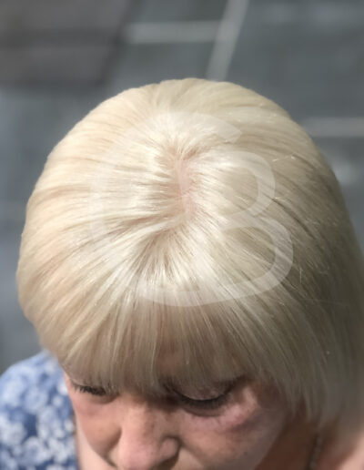 full scalp wig