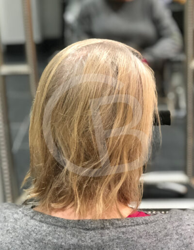 Hair loss solutions for women in Cheshire by Chris Baguley
