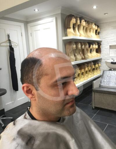 hair loss solutions for men