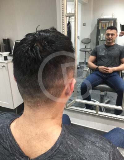 hair systems for men with hair loss