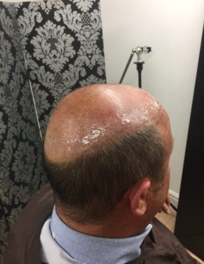male hair loss solutions