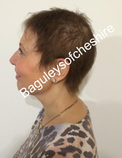 Chris Baguley's client with hair loss