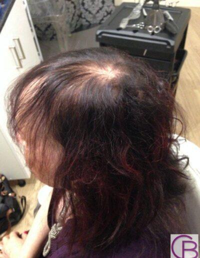 ladies thinning hair wigs