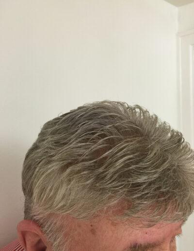 custom made toupee
