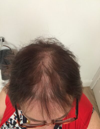 Hair loss solutions by Baguley's of Cheshire