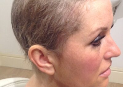 Julie lost her hair due to chemotherapy