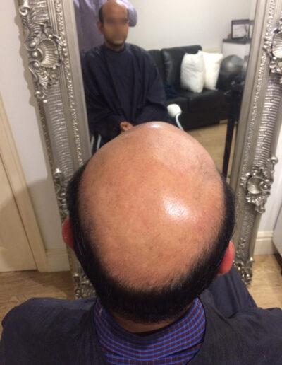 men with hair loss